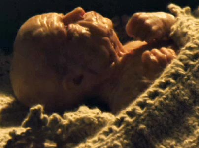 The Un-dead birth of Benjamin Button